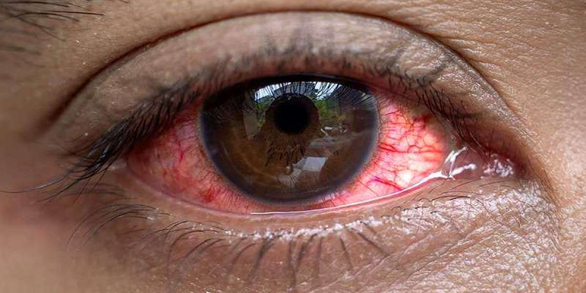 Benefits of Green Tea - Effects on Prevention of Eye Disease